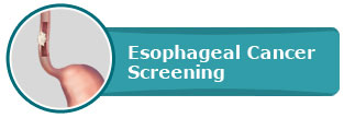 """Esophageal Cancer Screening Pacific- Gastroenterology Center for Digestive Health"""